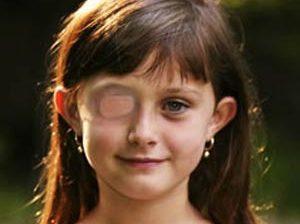 علائم تنبلی چشم در کودکان