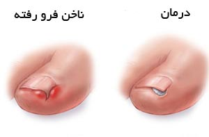 فرو رفتن ناخن پای کودک در گوشت